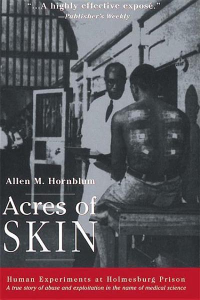 Download Acres of Skin Book