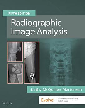 Radiographic Image Analysis E Book PDF