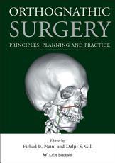 Orthognathic Surgery PDF