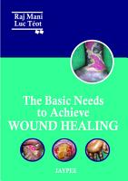 The Basic Needs to Achieve Wound Healing PDF