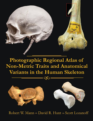 Photographic Regional Atlas of Non Metric Traits and Anatomical Variants in the Human Skeleton
