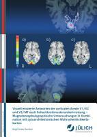 Visuell evozierte Antworten der corticalen Areale V1 V2 und V5 MT nach Schachbrettmusterumkehrreizung PDF