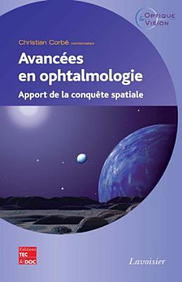 Avancées en ophtalmologie : apport de la conquête spatiale
