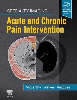 Specialty Imaging: Acute and Chronic Pain Intervention E-Book