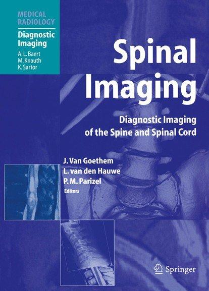 Spinal Imaging Pdf Book