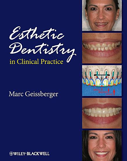 Esthetic Dentistry in Clinical Practice PDF