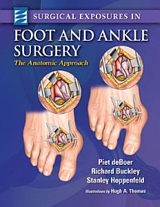 Surgical Exposures in Foot   Ankle Surgery PDF