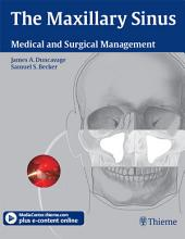Maxillary Sinus: Medical and Surgical Management