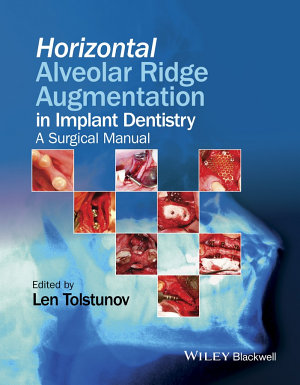 Horizontal Alveolar Ridge Augmentation in Implant Dentistry PDF