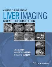 Liver Imaging: MRI with CT Correlation