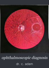 ophthalmoscopic diagnosis