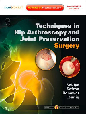 Techniques in Hip Arthroscopy and Joint Preservation E-Book