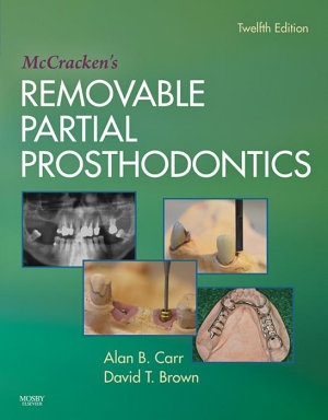 McCracken's Removable Partial Prosthodontics - E-Book
