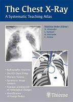 The Chest X ray PDF