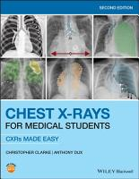 Chest X Rays for Medical Students PDF