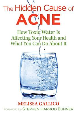 The Hidden Cause of Acne PDF