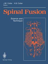 Spinal Fusion: Science and Technique