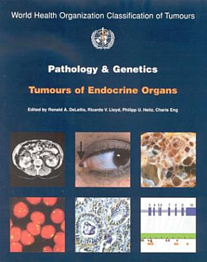 Pathology and Genetics of Tumours of Endocrine Organs
