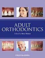 Adult Orthodontics PDF
