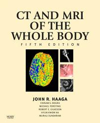 Computed Tomography Magnetic Resonance Imaging Of The Whole Body E Book Book PDF