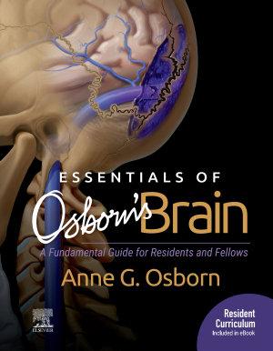Essentials of Osborn s Brain E Book