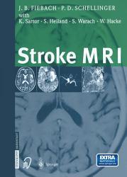 Stroke Mri Book PDF
