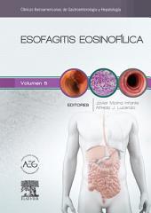 Esofagitis eosinofílica: Clínicas Iberoamericanas de Gastroenterología y Hepatología, Volumen 5