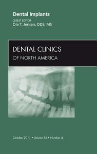 Dental Implants  An Issue of Dental Clinics   E Book