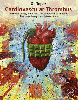 Cardiovascular Thrombus