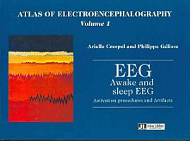 Atlas of Electroencephalography  Awake and sleep EEG  activation procedures and artifacts PDF
