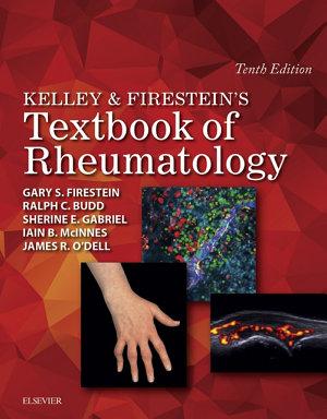 Kelley and Firestein's Textbook of Rheumatology E-Book