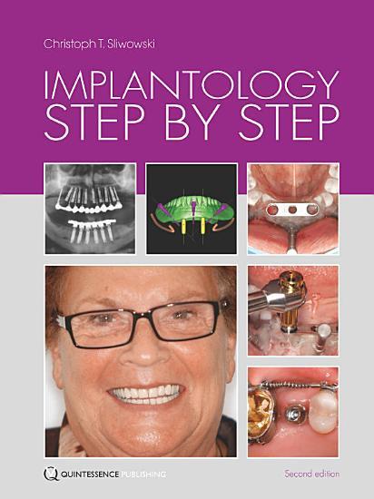 Implantology Step by Step PDF