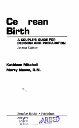 Cesarean Birth PDF