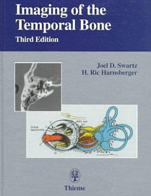 Imaging of the Temporal Bone PDF