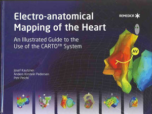 Electro anatomical Mapping of the Heart PDF