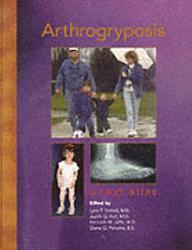 Arthrogryposis PDF