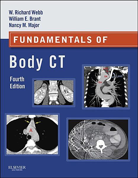 Fundamentals Of Body Ct E Book