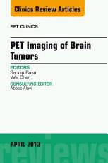 PET Imaging of Brain Tumors  An Issue of PET Clinics  PDF