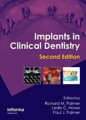 Implants in Clinical Dentistry, Second Edition: Edition 2
