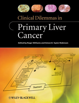 Clinical Dilemmas in Primary Liver Cancer PDF