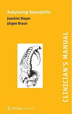 Clinician's Manual on Ankylosing Spondylitis