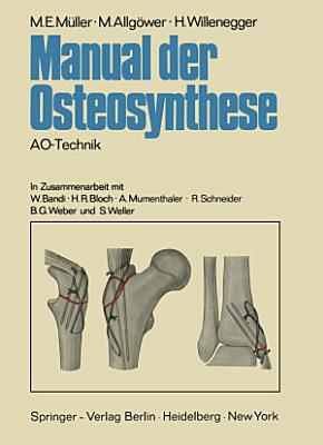 Manual der Osteosynthese PDF