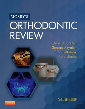 Mosby s Orthodontic Review   E Book PDF