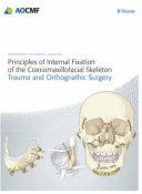 Principles of Internal Fixation of the Craniomaxillofacial Skeleton PDF