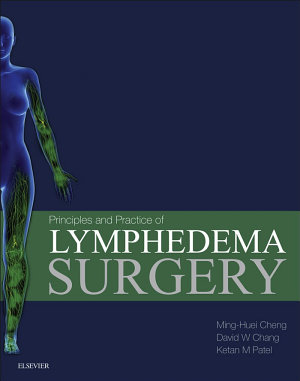 Principles and Practice of Lymphedema Surgery E-Book