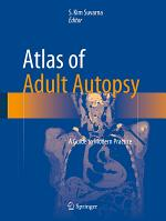 Atlas of Adult Autopsy