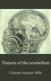 Tumors of the cerebellum
