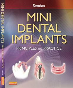 Mini Dental Implants   E Book