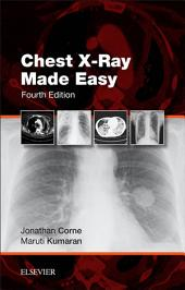 Chest X-Ray Made Easy E-Book: Edition 4