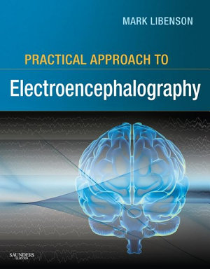 Practical Approach To Electroencephalography
